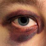 Máu tụ quanh mắt có nguy hiểm không?